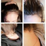 Kristen Hair Unicorn Hair Vitamins - 3 month photo review